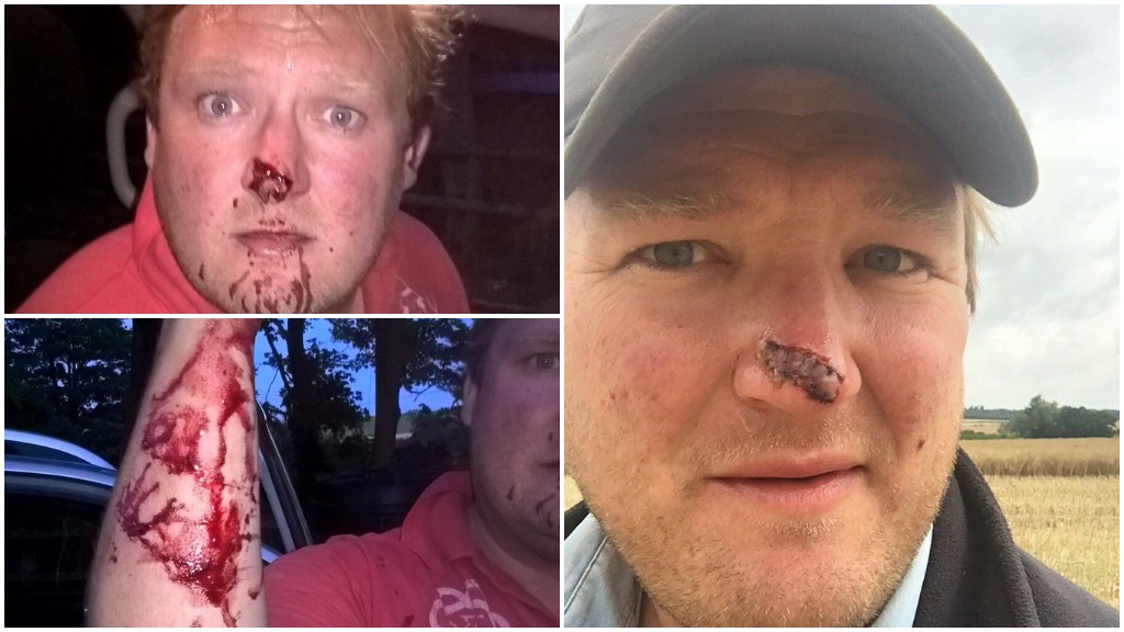 'We are soft targets' - farmer fears for safety after brutal attack by hare coursers
